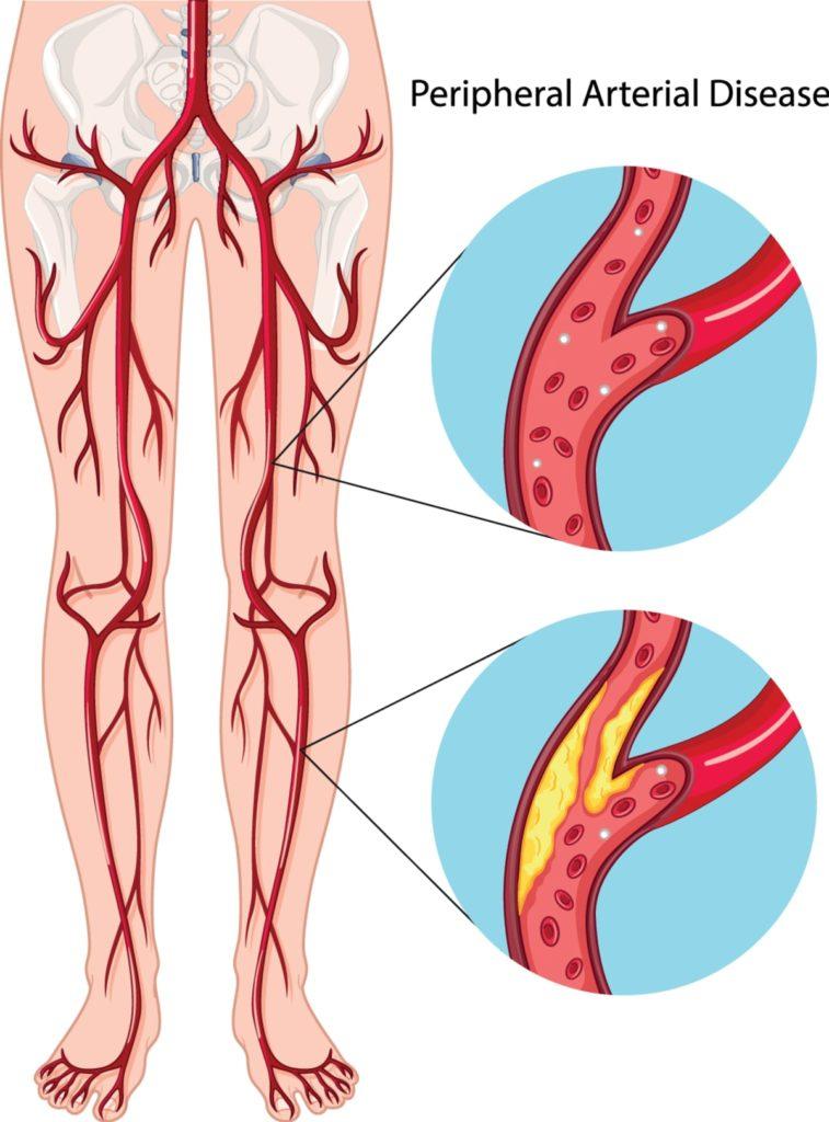 Arterial Care
