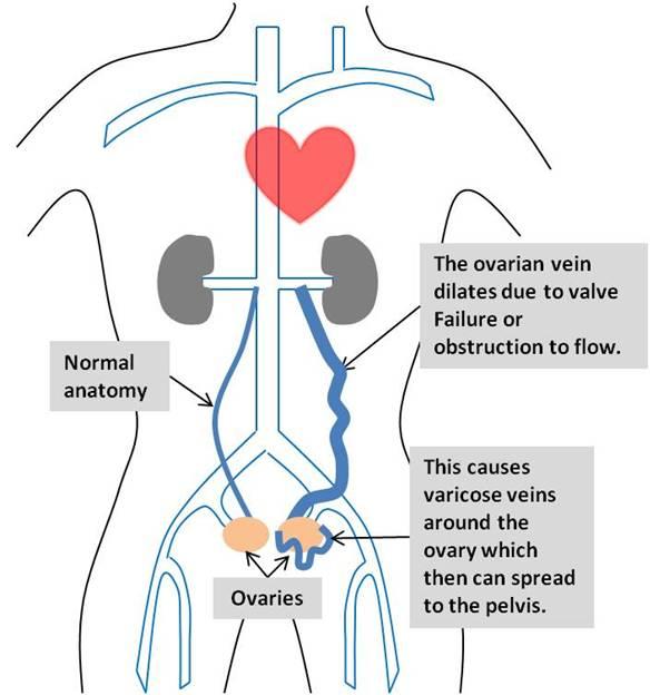 Pelvic Congestive Syndrome