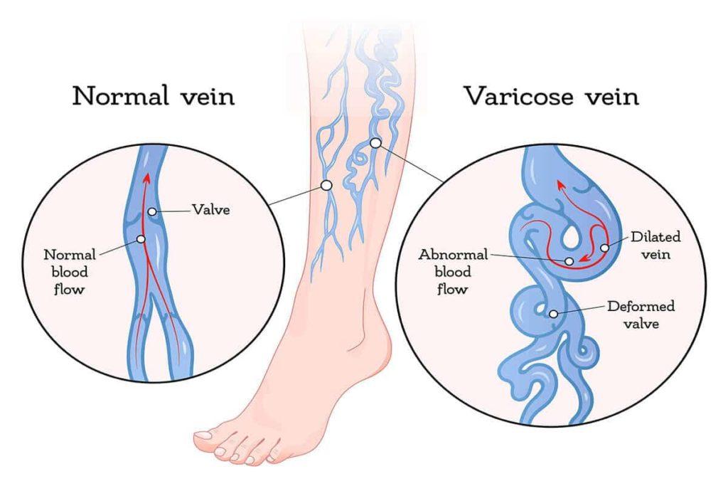 varicose vein care